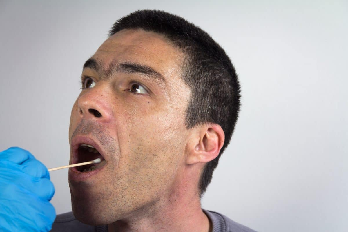 Mouth Swab Drug Test