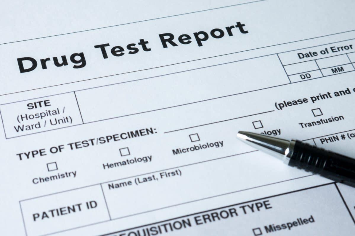 kratom drug test